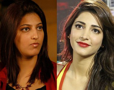 Shruti Haasan Before and After Nose surgery